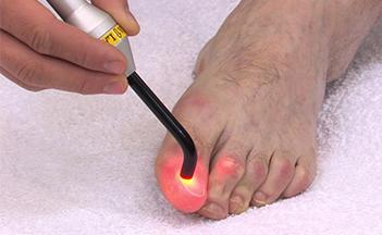 laser-1 Laser terapia