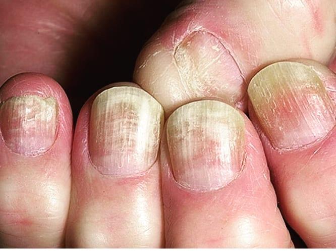 unghie-malate Laser terapia